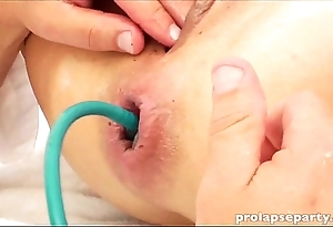 Anal prolapsing up ahead gynecologist